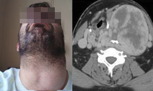 Severely enlarged left thyroid lobe
