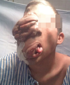 Awake Plexiform neurofibroma of face